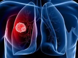 Xem hình dạng ngón tay trỏ để phát hiện ung thư phổi